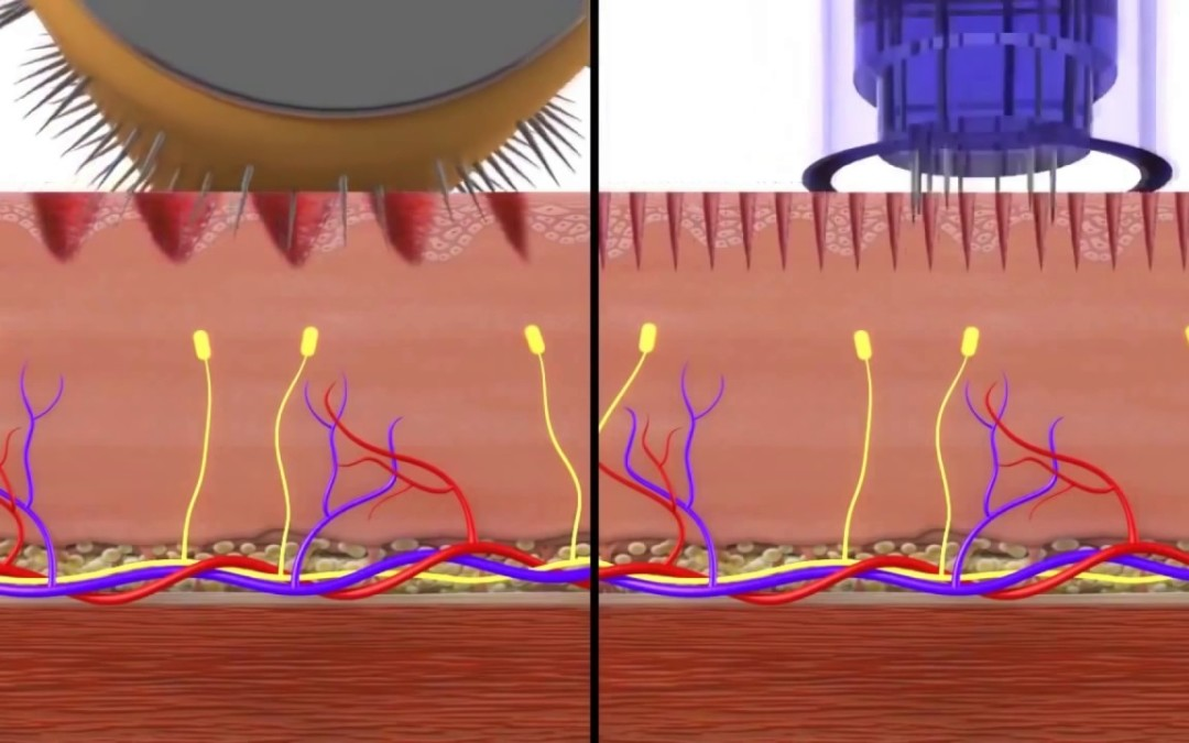 The effects of microneedling with a pen v a roller