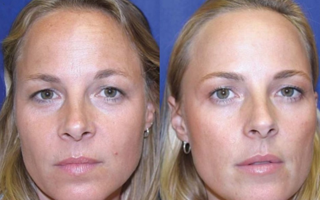 A Botox study on identical twins.